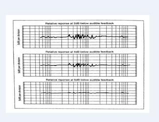 Một cách sử dụng EQ để kiểm soát tiếng hú